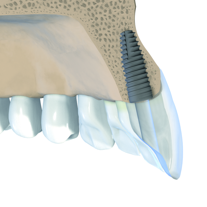 Straumann introduces a tapered implant for immediate