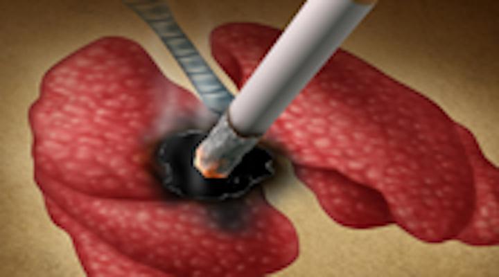 Content Dam Diq Online Articles 2015 04 Smoking Lung 180 100