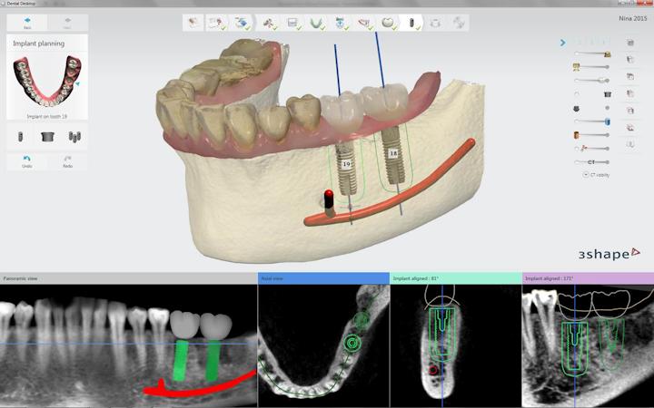 Content Dam Diq Online Articles 2015 07 Implantstudio Dentsply