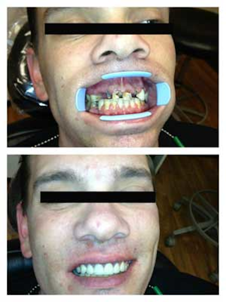 Meth mouth and the ravages of an addiction: from a dental