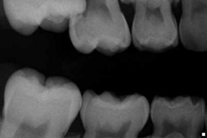 Orthodontic options for the ectopic eruption of a maxillary
