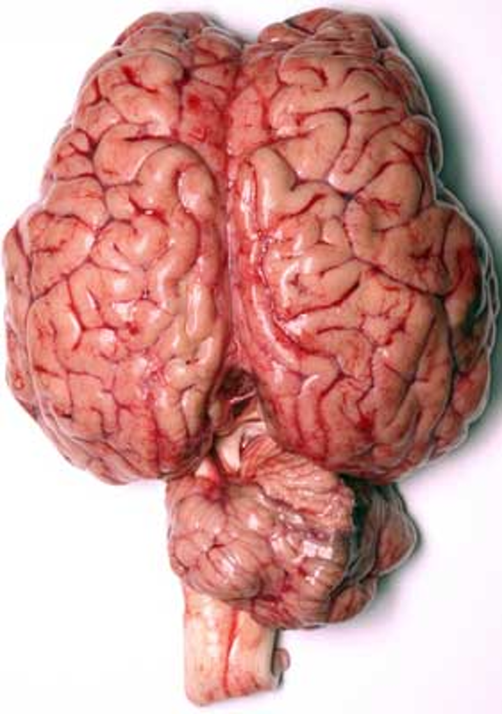 Brain Dreamstime