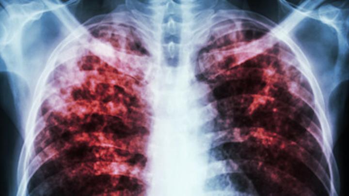 Content Dam Diq Online Articles 2015 12 Tuberculosis Thumb