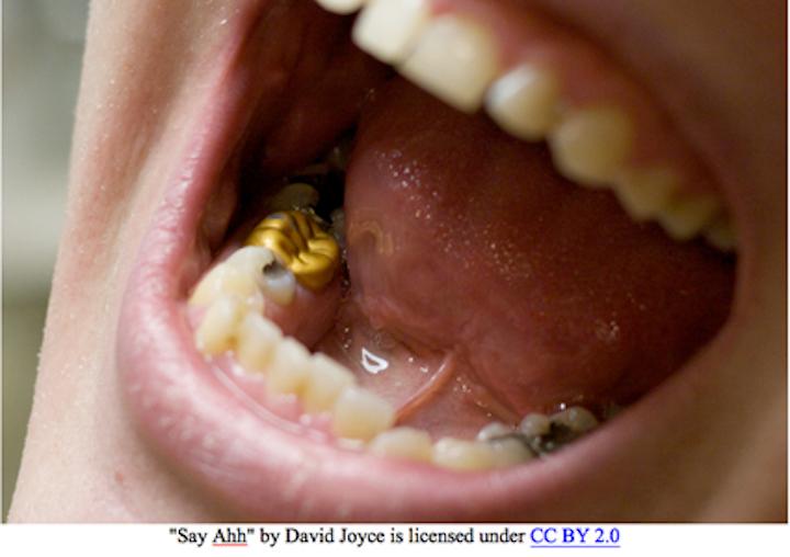 Dental Office Waste