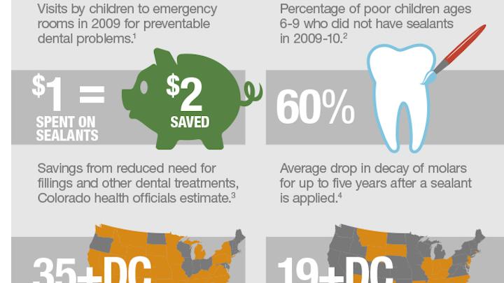 Dental Sealant Infographic