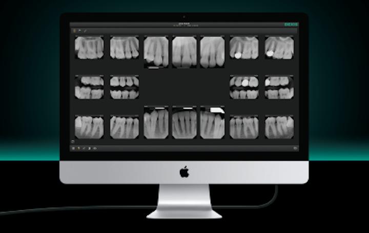 Dexis debuts imaging software for Mac at CDA in San Francisco
