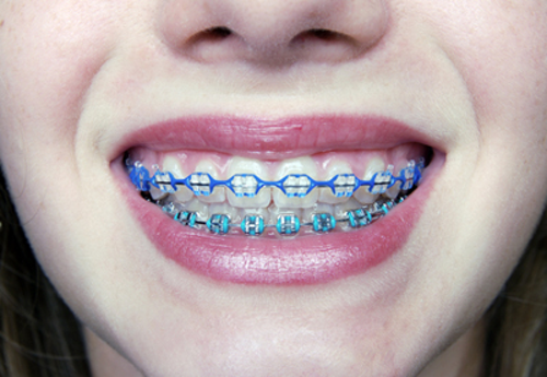 Are Braces Better Than Invisalign Dentistryiq