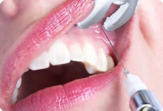 Relax -- dental injections are now pain-free! | DentistryIQ