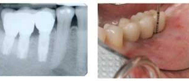 Making painful sinus lift dental implants a thing of the