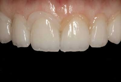 Denmark tooth-cure support