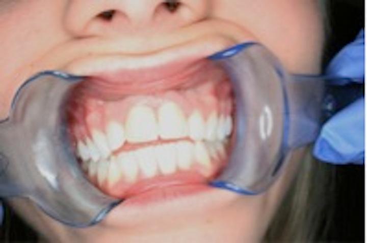 Dental Trauma A Hygiene Student S Case Study Dentistryiq