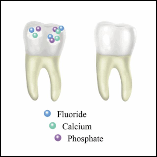 Understanding Acid Reflux and Its Dental Manifestations
