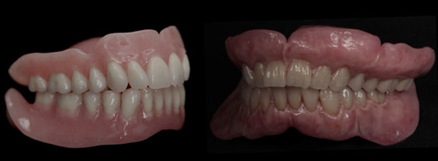 So easy, a prosthodontist can do it: A simple and cost