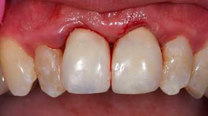 Anterior Dental Implant Cases Fixed Temporaries For Greater Case Acceptance And Better Soft Tissue Outcomes Dentistryiq