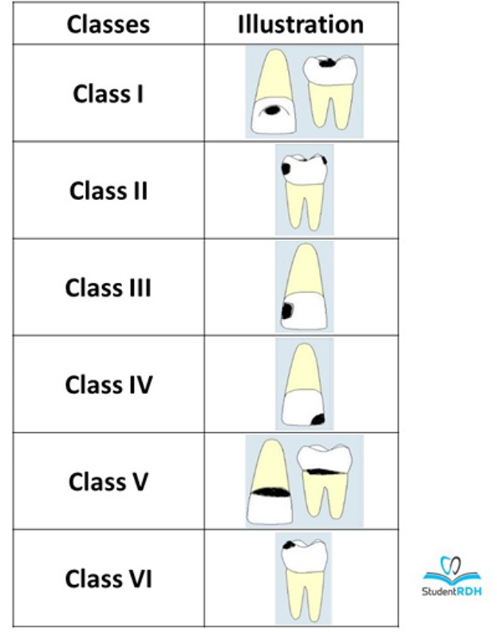 Must-know classifications of dental caries for the national