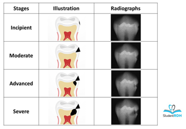 Must-know classifications of dental caries for the national dental