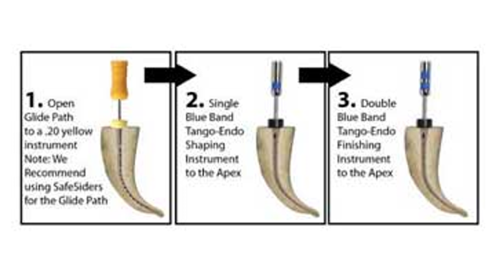 Endodontic insight: Two-instrument shaping for endodontic