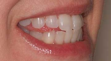 Add Teeth To Your Order For Better Fitting