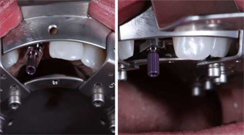Taking open-tray implant impressions using the WindowTray