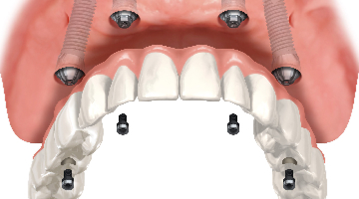 Full-arch, dental implant-supported bridges: Why offering