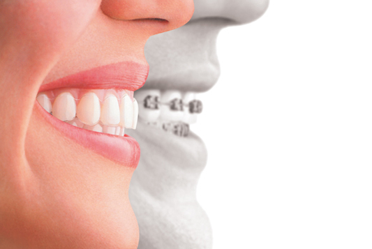 Clear aligners versus traditional braces: 4 benefits for adult orthodontic  patients | Dentistry IQ