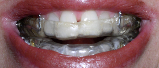 How to confidently address tooth-wear issues: A systematic
