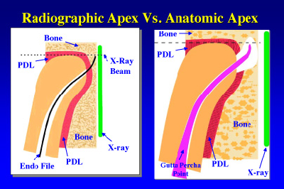 Root Canal Treatment Where Does The Apex End Dentistryiq