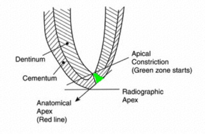 root canal treatment  where does the apex end