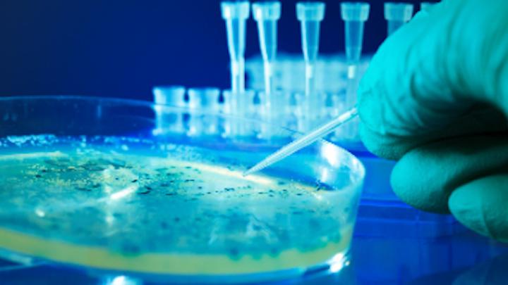 Content Dam Diq Online Articles 2017 02 Bacterial Colonies Dreamstime Thumb