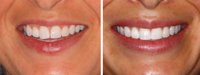 Beyond the smile: Lip augmentation with dermal fillers (part
