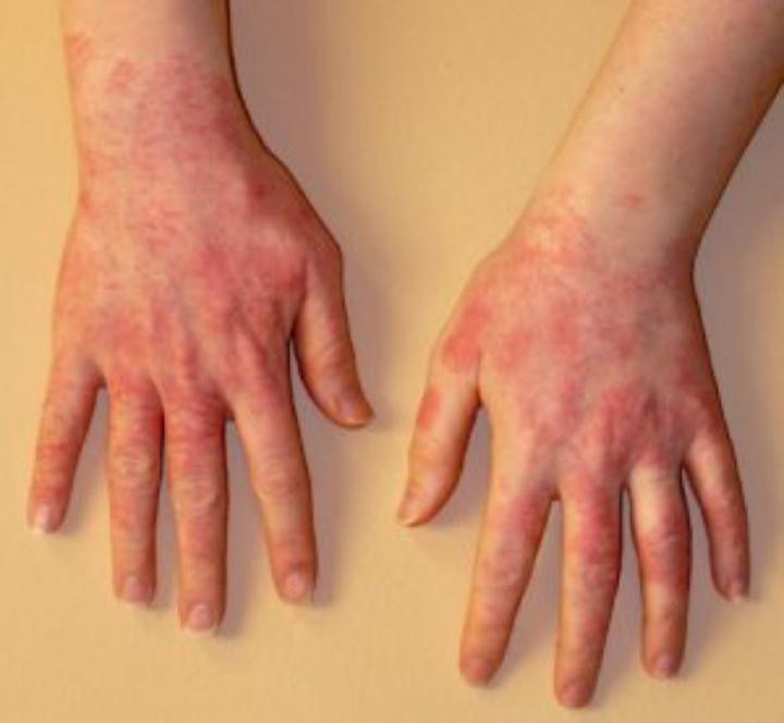 lax allergi symptom