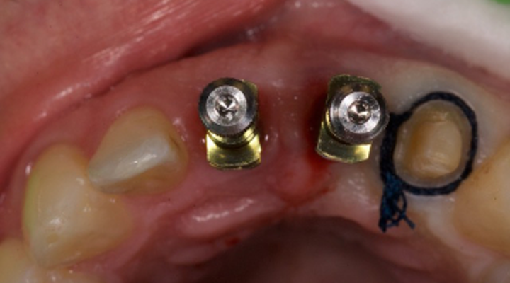Want to restore more dental implants? Treatment plan them