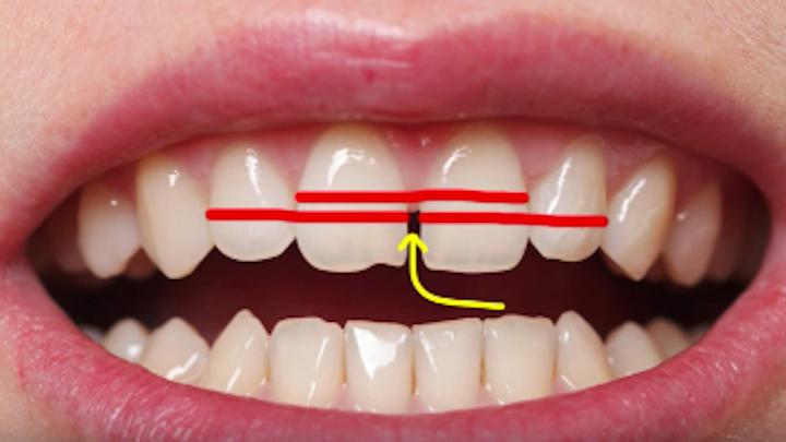 Content Dam Diq Online Articles 2018 07 Diy Dentistry