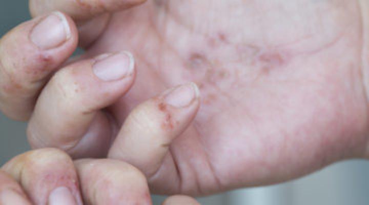 Content Dam Diq Online Articles 2018 08 Dermatitis Hands Auger Diqthumb