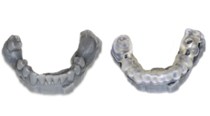 Has 3-D printing for the dental office arrived? | DentistryIQ