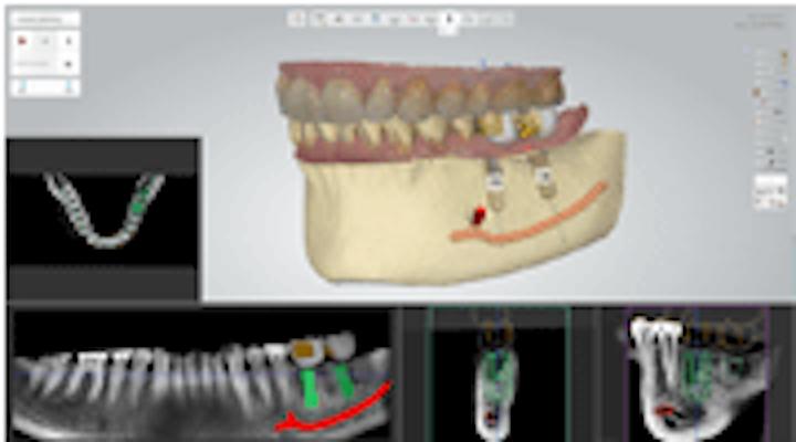 Content Dam Diq En Articles 2015 01 3shape Implant Studio Users Can Now Access Biohorizons Implants Leftcolumn Article Thumbnailimage File