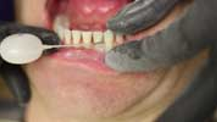 Content Dam Diq En Articles 2015 05 Pearls Enhanced Colleen Olson Rdh Demos Air Polishing With The Etchmaster By Groman Dental Leftcolumn Article Thumbnailimage File