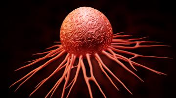Content Dam Diq En Articles Apex360 2016 05 Oral Bacteria Linked To Pancreatic Cancer Leftcolumn Article Thumbnailimage File