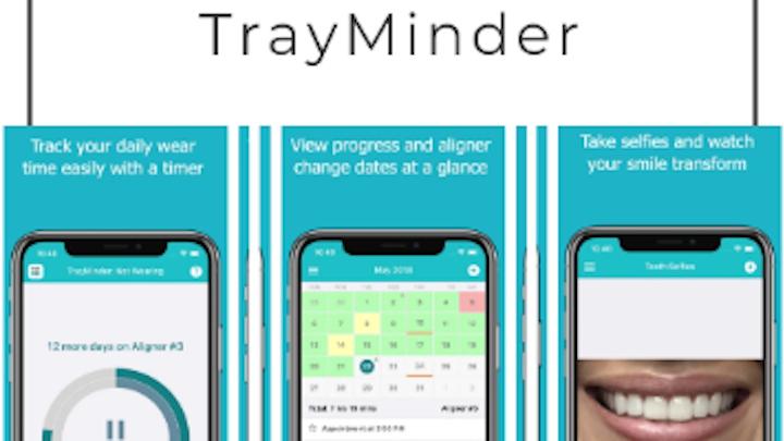 Content Dam Diq Online Articles 2019 03 Trayminder Thumb
