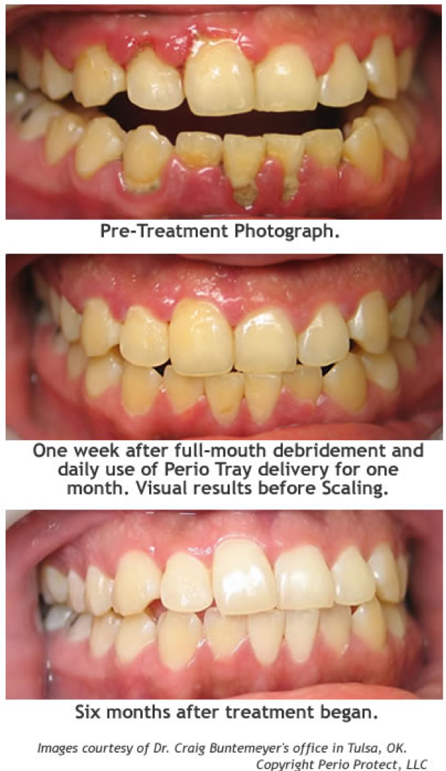 Healthier Gums Are Just 1 Of The 3 Things Patients Can Get From