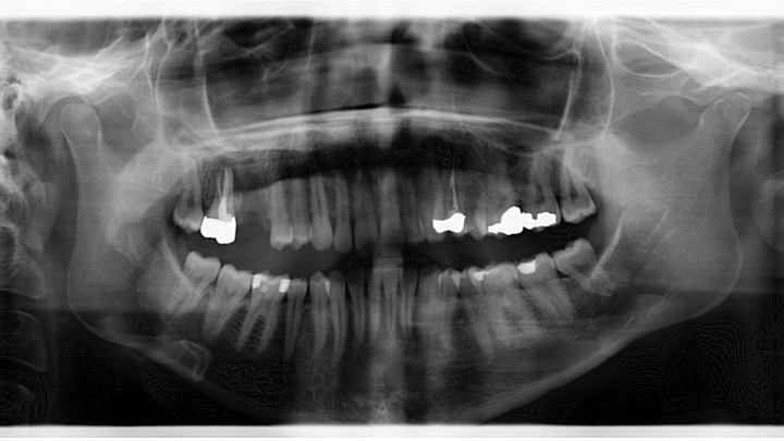 Figure 1: Radiograph taken six years prior to case presentation shows a radiopaque s-/oval-shaped lesion on the right side of the mandible just inferior to the apical roots of tooth No. 31.