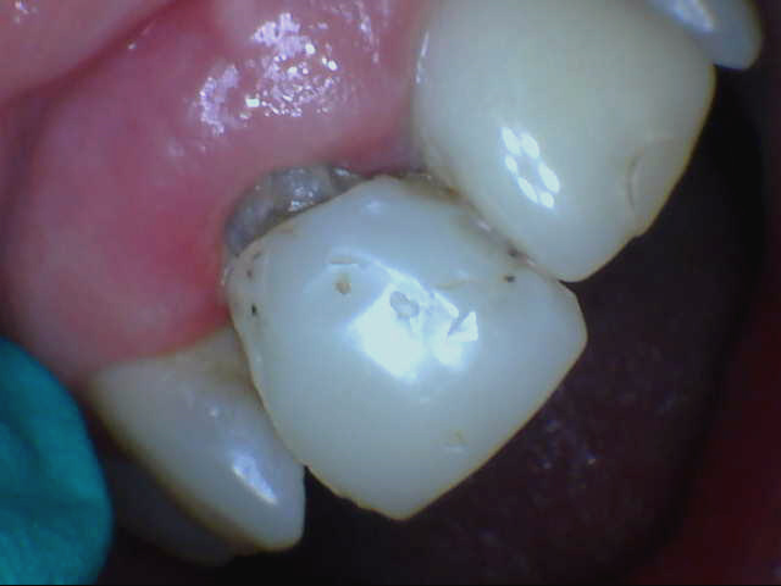 12 Years In Temps Placed On Implants Dentistryiq